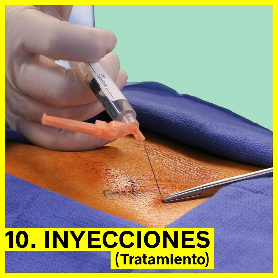 Inyecciones de esteroides